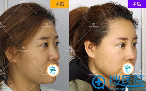 王兴奎耳软骨鼻综合修复术后对比