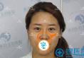 选择石家庄蓝山整形做鼻修复手术太正确了 王兴奎院长技术真棒