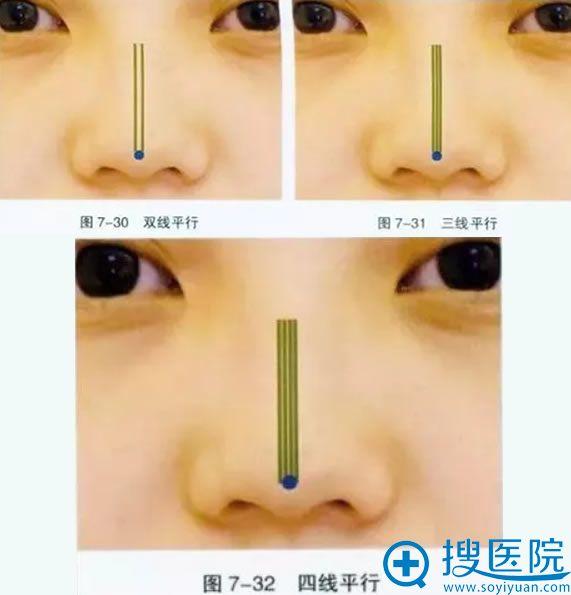 线雕隆鼻之鼻梁线布局方案