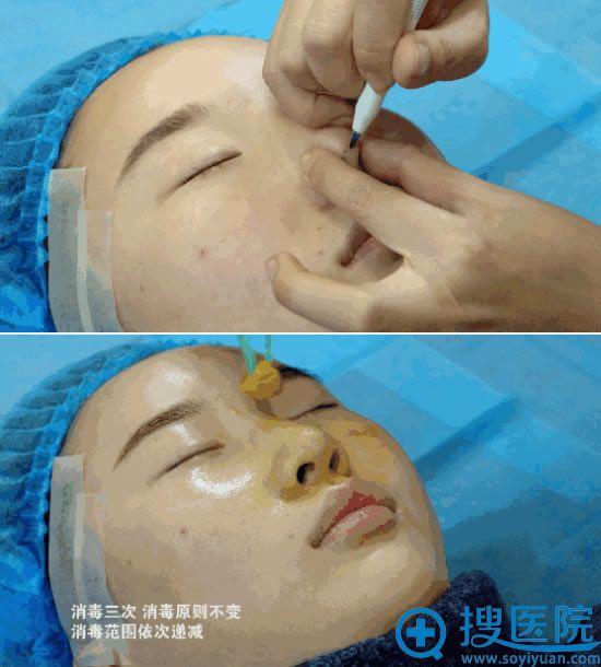 哈尔滨华美线雕隆鼻术前准备