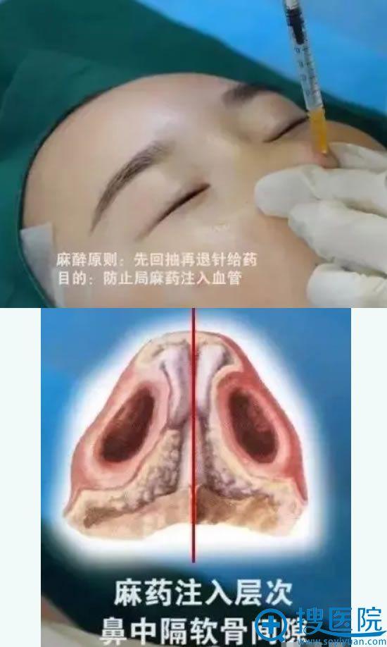 华美线雕隆鼻手术麻醉过程
