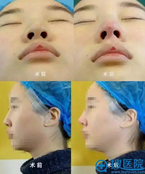 哈尔滨华美线雕隆鼻手术即刻效果图