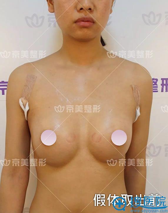 隆胸假体取出前照片