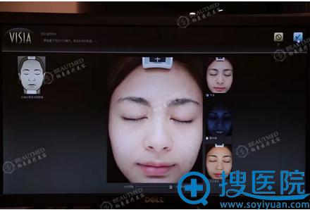 光子嫩肤步VISIA皮肤检测