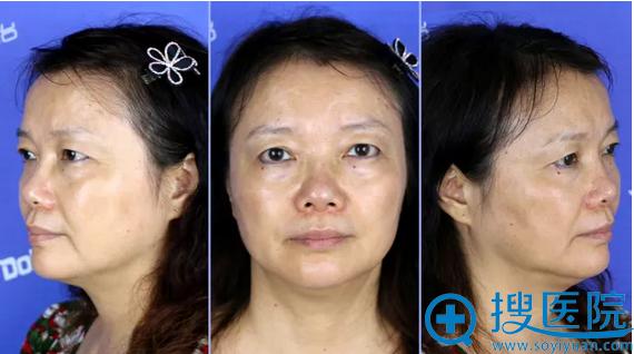 超声刀术前,妈妈泪沟、眼周皱纹都很明显