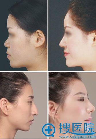 鼻整形专家乐金堂的鼻综合真人案例