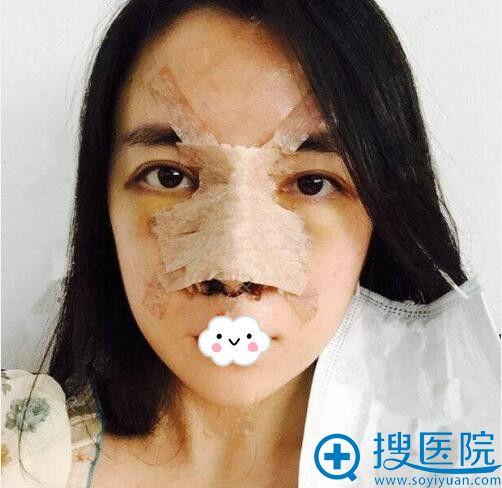 南京微颜张鹏飞医生鼻综合术后1天