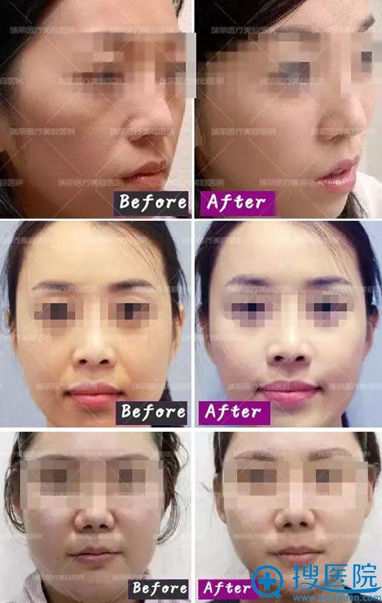美肤专家刘峰注射微整形案例