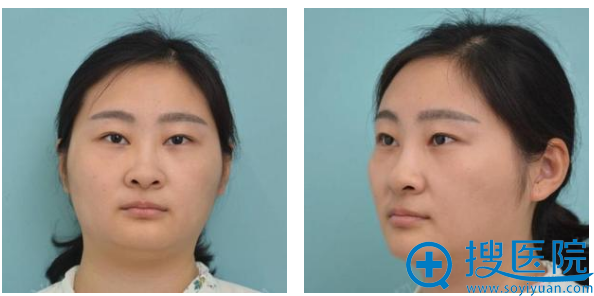 隆鼻术前的照片