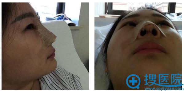 上海九院张盈帆为我做完自体肋软骨隆鼻第一天