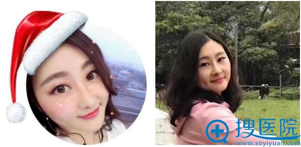 上海九院张盈帆隆鼻案例1个月自拍