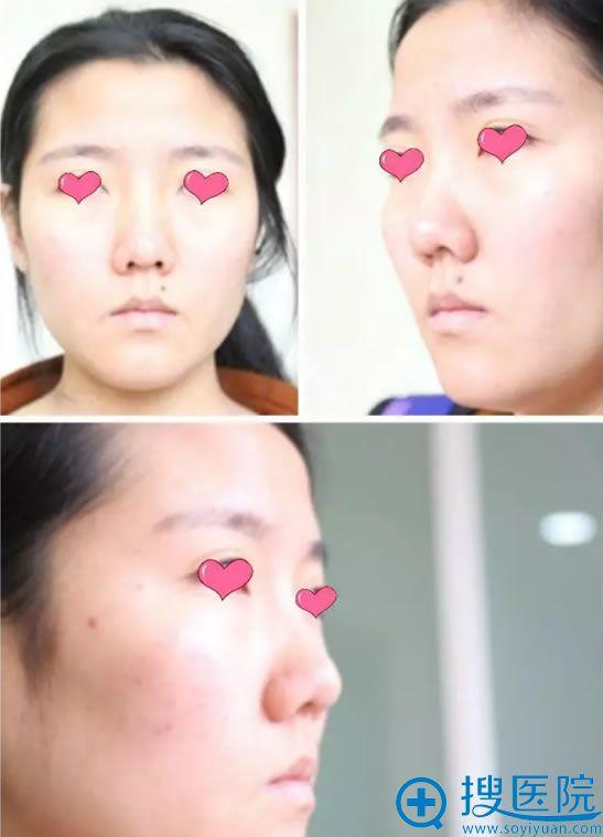 静静做隆鼻手术前的照片