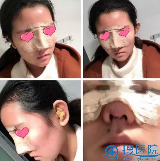 在上饶韩美做鼻综合手术第1天