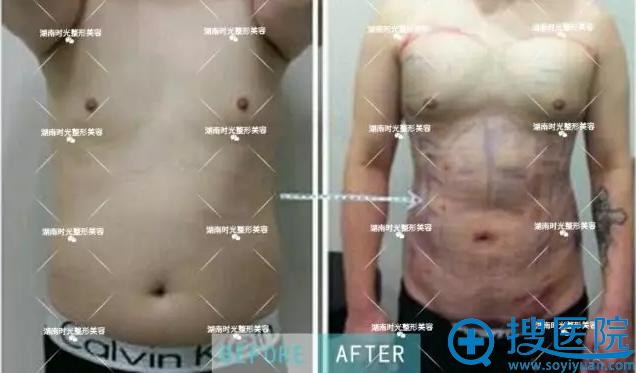 湖南时光腰腹吸脂术案例前后对比