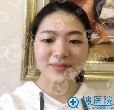 做双眼皮手术前的单眼皮照片