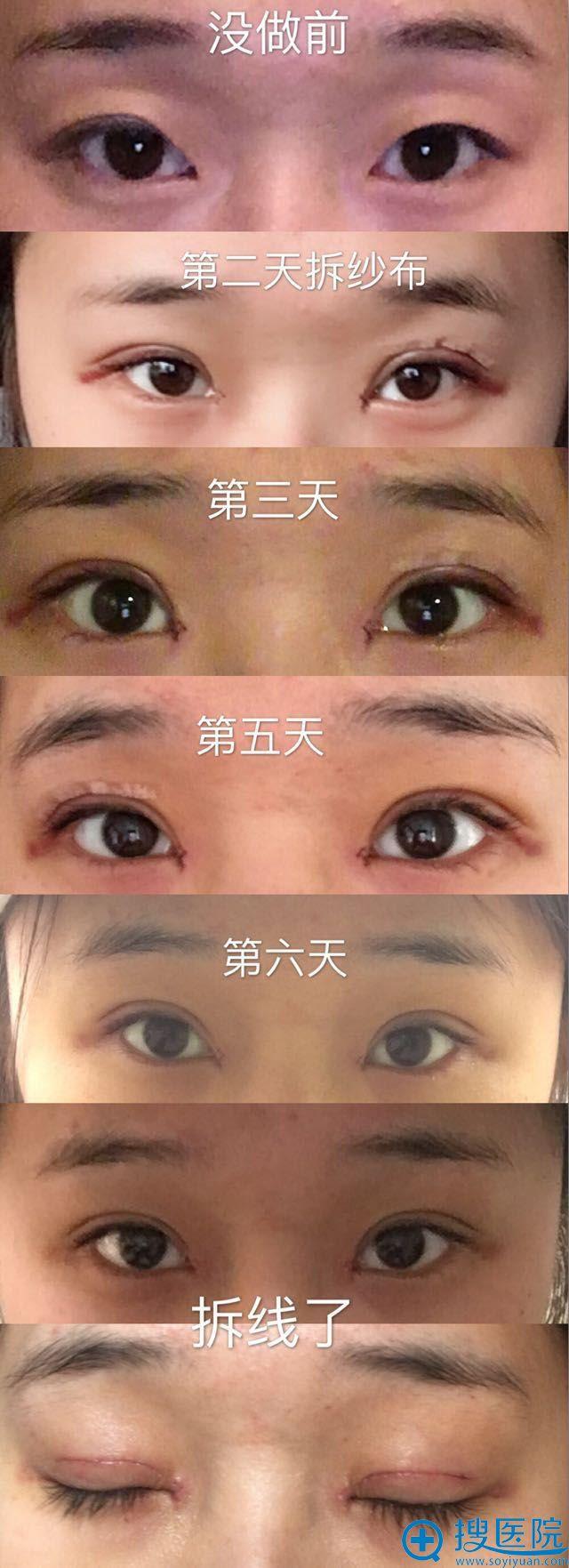 青岛诺德双眼皮+开眼角+提肌术前术后变化过程