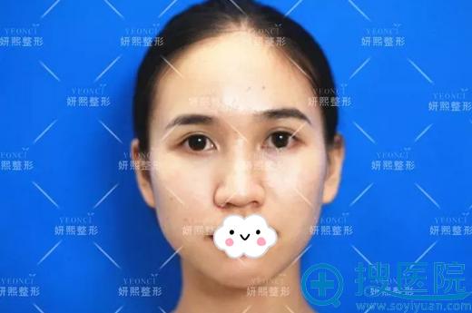 隆鼻术前鼻翼肥大,鼻梁低