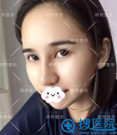 深圳妍熙假体+耳软骨垫鼻尖术后照片