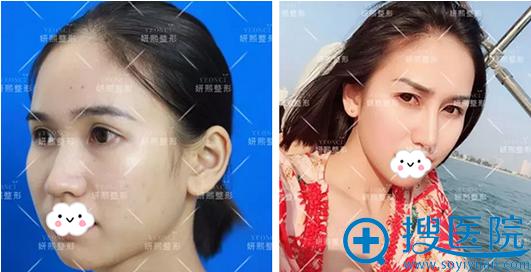 深圳妍熙鼻翼缩小手术前后对比照