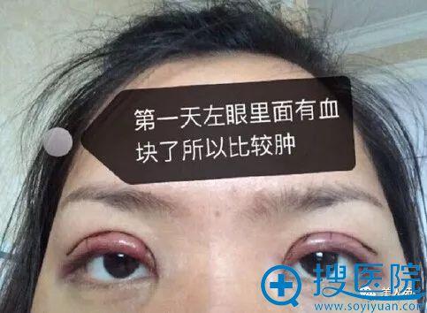周一雄双眼皮案例第一天