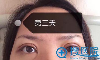 上海九院周一雄双眼皮第3天