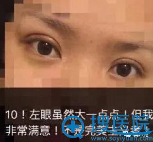 上海九院周一雄7毫米双眼皮案例10天恢复图