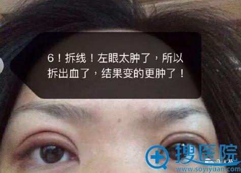 上海九院周一雄双眼皮案例第6天