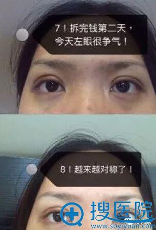周一雄双眼皮案例第7天恢复情况