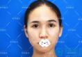 路人甲变身甜美小姐姐 深圳妍熙耳软骨隆鼻+鼻翼缩小前后对比