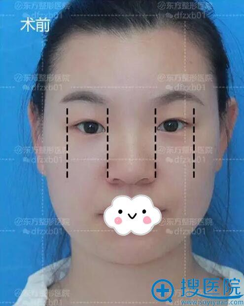 到郑州东方整形医院做双眼皮术前