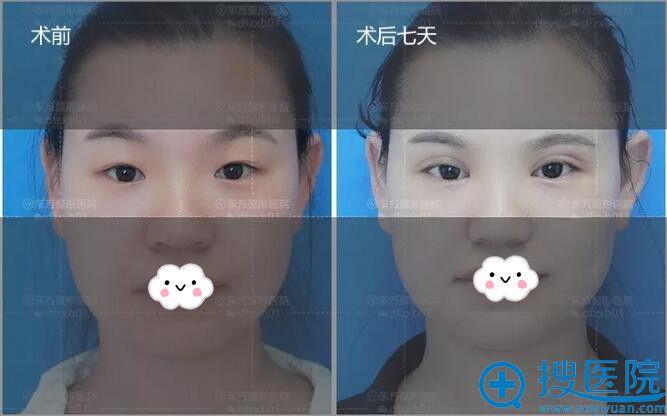 郑州东方双眼皮+开眼角术前与术后7天对比