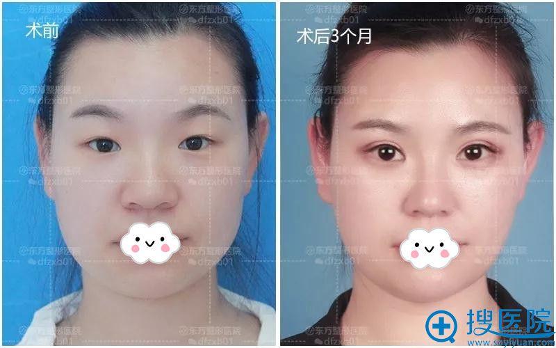 郑州东方双眼皮+开眼角术前与术后3个月效果
