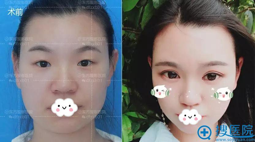郑州东方开眼角术前与术后3个月半月案例