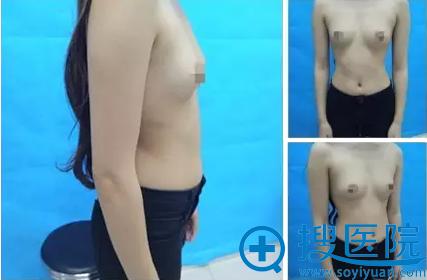 假体丰胸术前照片