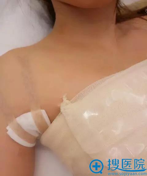 法国ES假体丰胸术后2天恢复情况