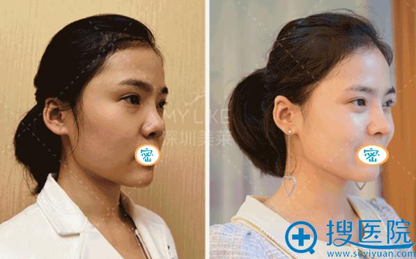 深圳美莱梁晓健达拉斯隆鼻术后对比照