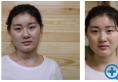 面诊了济南历下美莱韩旭和汪峰后选择韩旭做了动感无痕双眼皮