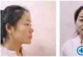 这是璇子找济南历下美莱韩旭做的双眼皮隆鼻和脂肪填充案例