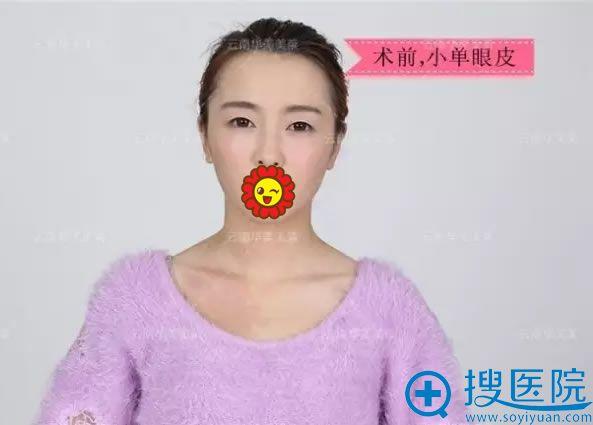 做双眼皮手术前的小单眼皮