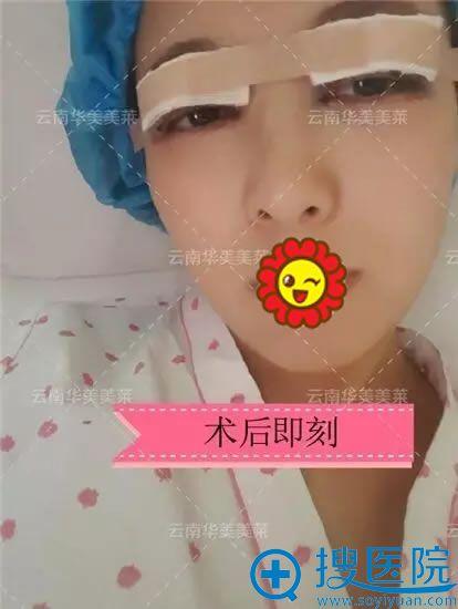 曲靖华美美莱双眼皮手术即刻照片