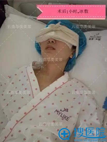 做完双眼皮手术1个小时冰敷