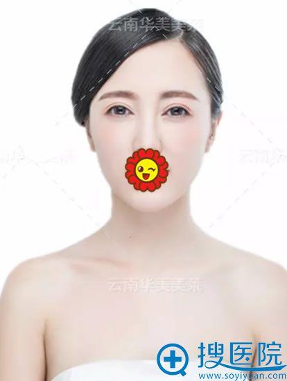 华美美莱双眼皮案例恢复效果图