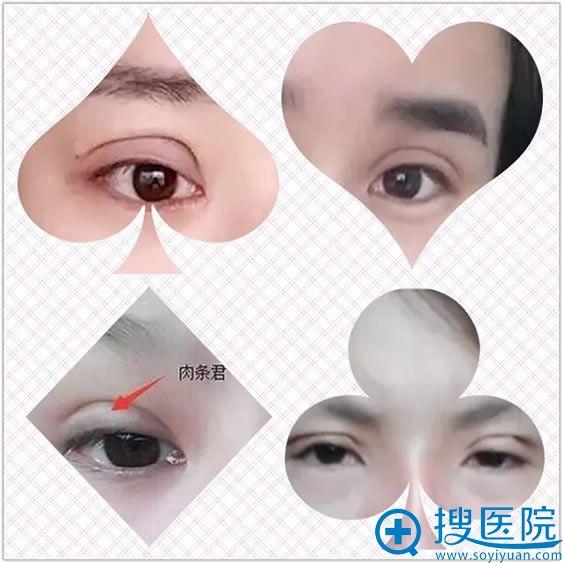 双眼皮手术失败的表现