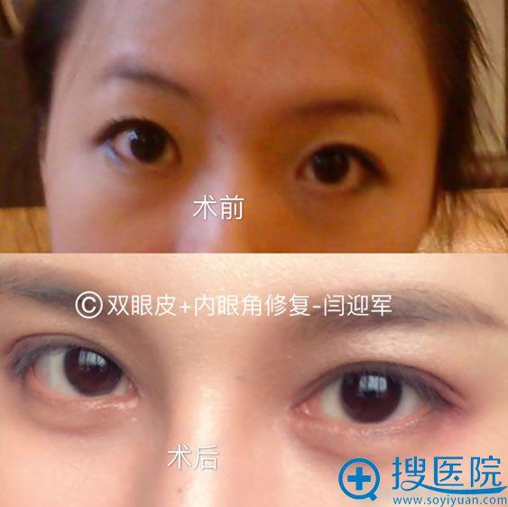 北京莫琳娜闫迎军双眼皮和内眼角修复案例