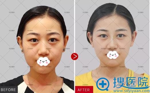 郑州天后线雕隆鼻正脸术后效果对比