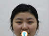 终于下定决心在天津圣韩美整形医院找卢雨生做切开双眼皮了