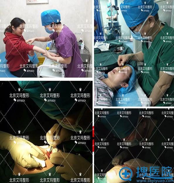 北京艾玛纪柳院长双眼皮手术过程