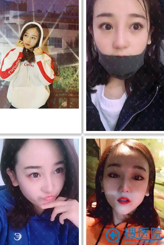 北京莫琳娜李辉鼻综合案例效果