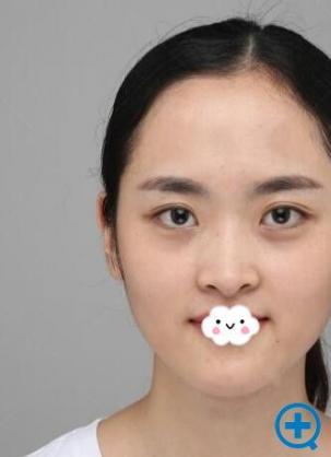 我鼻梁低鼻头尖到重庆华美做假体隆鼻+耳软骨垫鼻尖后有效改善