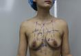觉得郑州东方女子医院靠谱 找陈涛主任做了水滴形假体隆胸手术